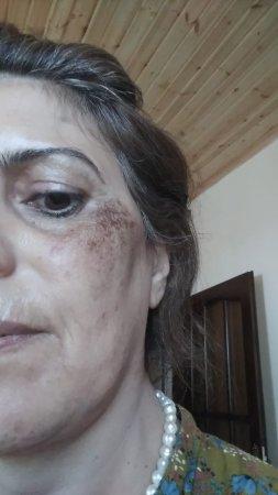 Qobustan rayon Mərkəzi xəstəxanasının baş həkimindən rüşvət almanın yeni üsulu: Şok iddia-Video